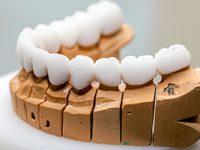 בניית עצם